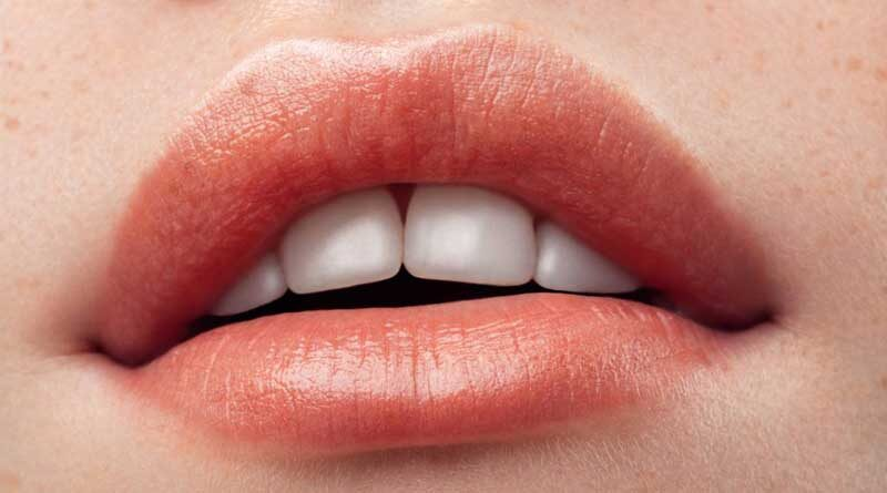Can You Wear Lipstick After Lip Fillers?